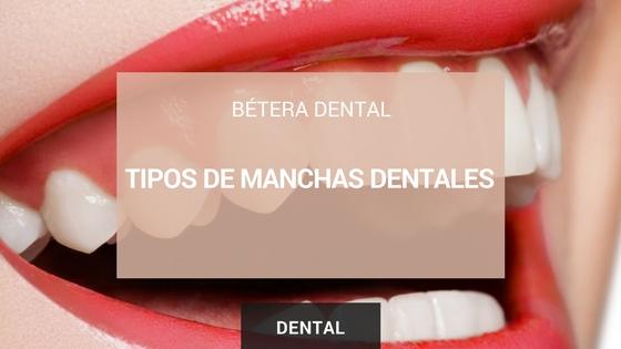 manchas dentista